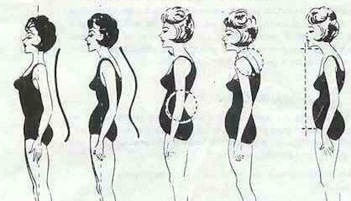 Defective_body_postures-
